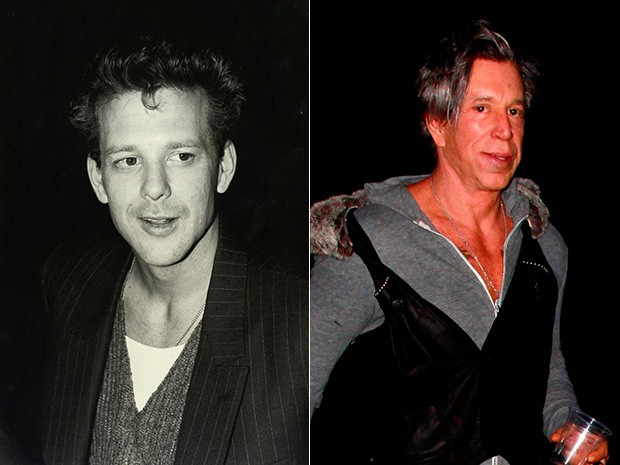 Mickey Rourke - antes e depois (Foto: Getty Images   AKM)