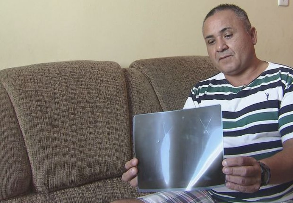 Após três anos, Francisco desabafa: 'Não desejo ao meu pior inimigo' (Foto: Reprodução/TV Tribuna)
