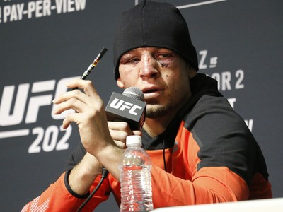 Nate Diaz; cigarro eletrônico; UFC 202 (Foto: Evelyn Rodrigues)
