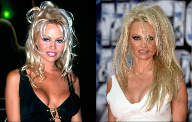 Pamela Anderson, estrela de 'S.O.S. Malibu' (1989–2001), tinha 27 anos na foto da esquerda e está agora com 47, como se vê na imagem à direita. Parece que alguém abusou das plásticas... (Foto: Getty Images)