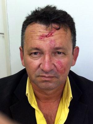 Ubiracy Pascoal disse que foi mordido por adversário político (Foto: JC/G1)