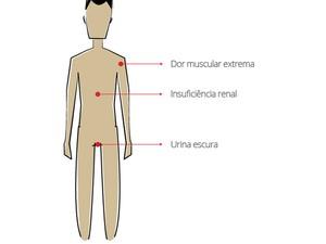 Infográfico Mialgia (Foto: Infográfico G1)