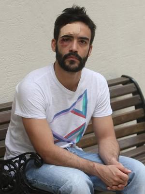 André Baliera foi agredido na noite de segunda (Foto: Paulo Liebert/Estadão Conteúdo)