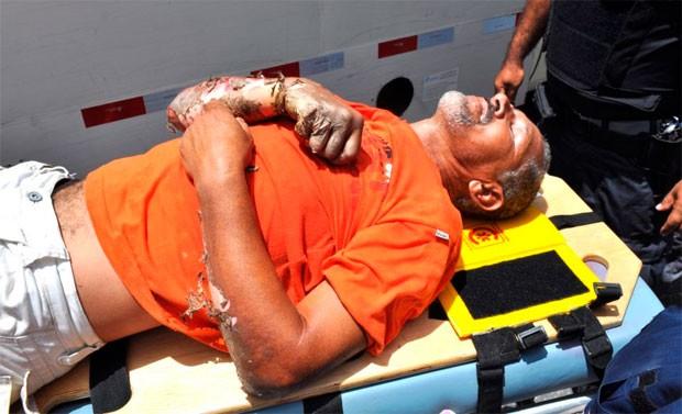 Iranilton Pereira da Costa sofreu queimaduras nos braços, nádegas e coxa esquerda (Foto: Ana Amaral/Prefeitura de Parnamirim)