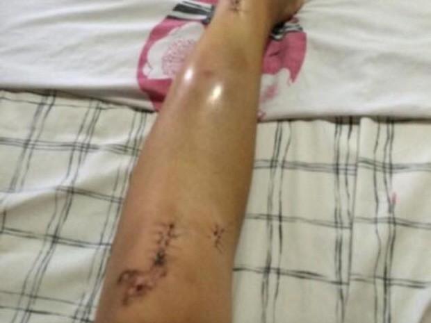 Estudante teve de passar por cirurgia na perna (Foto: Larissa Magalhães / Arquivo Pessoal)