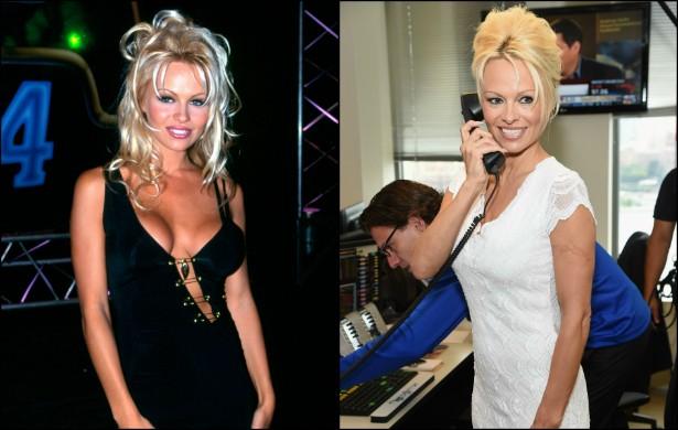 Estrela-mor do seriado praiano 'S.O.S. Malibu' (1989–2001), Pamela Anderson foi um furacão de beleza e polêmicas envolvendo diferentes namorados ao longo dos anos 90. Hoje, nota-se que fez algumas plásticas, mas continua enxuta. Na foto à esquerda, estava com 27 anos de idade. Hoje tem 47. (Foto: Getty Images)