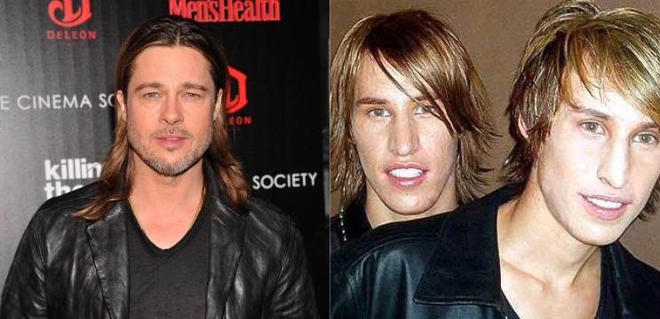 Os gêmeos Mike e Matt foram ao controverso programa da MTV 'I Want a Famous Face' em uma tentativa de parecerem com o ator Brad Pitt. Eles despenderam US$ 25 mil em várias cirurgias, como rinoplastia e implantes no queixo e bochecha. O resultado ficou meio duvidoso, porém os irmãos gostaram.  (Foto: Getty Images/Reprodução)