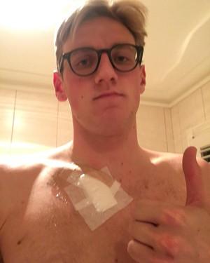 Mack Horton passou por cirurgia para retirar verruga (Foto: Reprodução/Instagram)