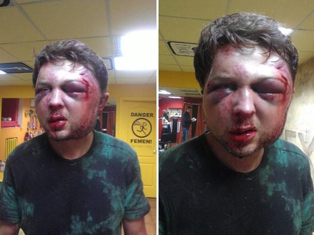 Viktor Svyatsky ficou com o rosto deformado após ser agredido na sede do Femen em Kiev (Foto: AFP/Femen)