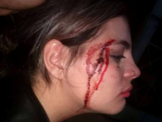 Jovem acusa rapaz de agredí-la com um soco em balada de Santos, SP (Foto: Letícia Lima / Arquivo Pessoal)