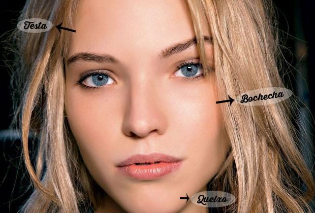 saiba o que pode causar espinhas na testa, bochechas, queixo e outras áreas do rosto (Foto: Imax Tree)