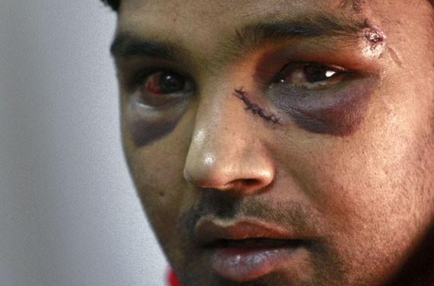 O padeiro Ali Kaser, 25, alega que foi atacado por membros do partido neonazista Amanhecer Dourado antes das eleições presidenciais. Ele aparece em coletiva de impensa do movimento de apoio aos imigrantes foto tirada nesta quinta (21) (Foto: AP)