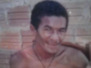 Márcio Ronny teve 72% do corpo queimado (Foto: Divulgação/Arquivo Pessoal)