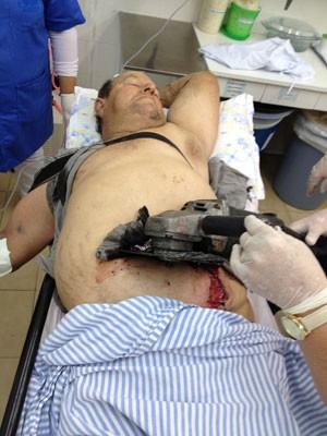 Serra elétrica cravada em abdome de agricultor no RS (Foto: Hospital Vida e Saúde/Divulgação)
