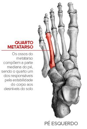 Info Contusão Neymar Metatarso (Foto: Infoesporte)