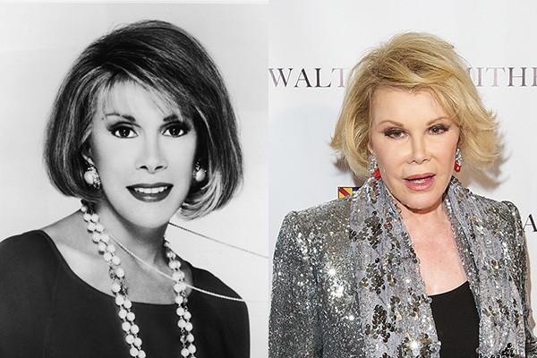 A falecida comediante Joan Rivers passou por incontáveis cirurgias plásticas, entre elas para mexer no nariz e injetar botox. (Foto: Getty Images)