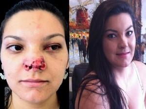 Renata Oliveira após ataque do ex-namorado e agora, após cirurgia plástica (Foto: Arquivo Pessoal/Renata Oliveira )