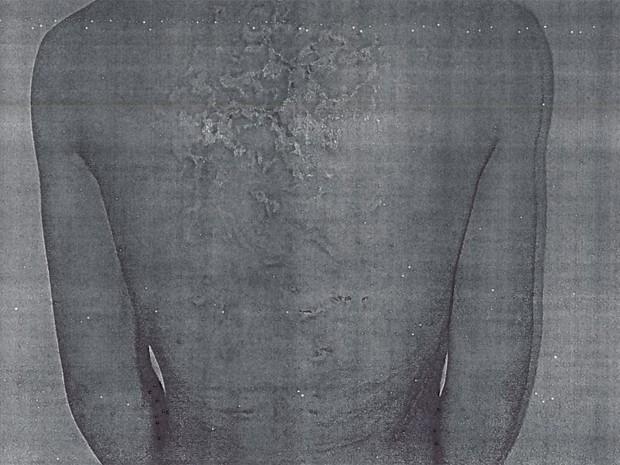Corpo de chinês apresentava inúmeras marcas quando foi hospitalizado em 2013. (Foto: Divulgação / MPT)