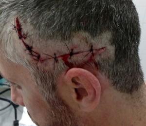 Banhista levou mordida de tubarão na cabeça (Foto: Arquivo pessoal)