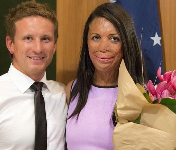 Turia Pitt e o noivo Michael Hoskin (Foto: Reprodução/Instagram)