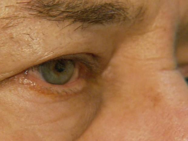 Em primeira fase de testes, dez pacientes usaram dispositivo contra doenças na retina em Ribeirão Preto (Foto: Antônio Luiz/EPTV)