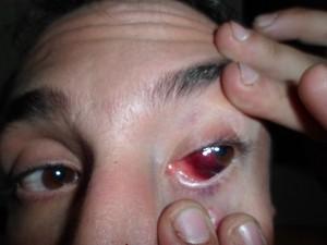 Homem alega ter sido espancado por seguranças de casa de show em São Carlos (Foto: Arquivo pessoal)