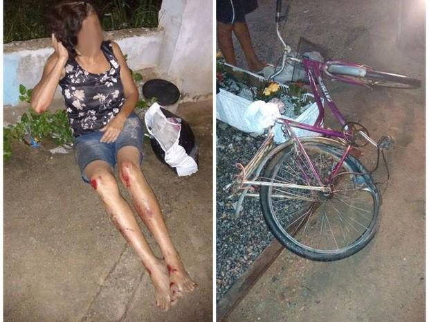 Mulher de 58 sofreu ferimentos nos braços e nas pernas (Foto: Camila Mendes/ Divulgação Lei Seca Maricá)