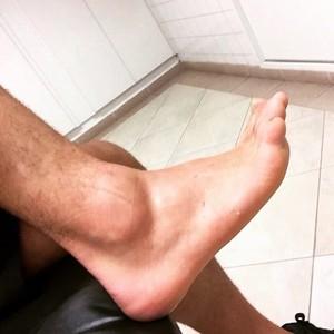Alexandre Pato tornozelo (Foto: Reprodução/Instagram)