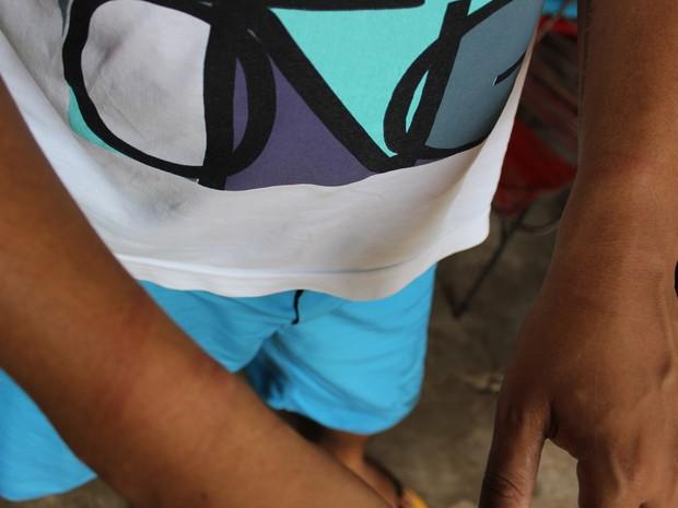 Marcos Bruno Sousa diz que algemas apertadas marcaram seus pulsos (Foto: Yara Pinnho / G1 PI)