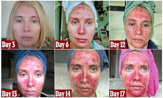 A evolução das graves lesões faciais provocadas por excesso de sol