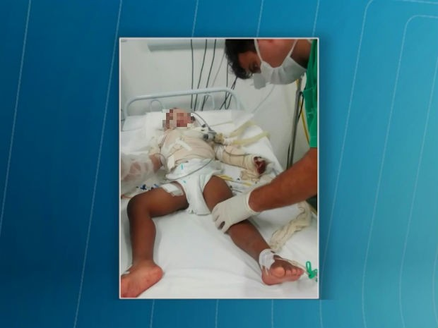 Menino de 4 anos teve 60% do corpo queimado (Foto: Reprodução/TV Subaé)