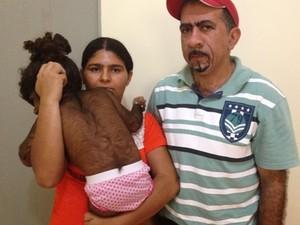 Kemilly Vitória nasceu com o corpo coberto de pelos e pais buscam tratamento (Foto: Fernanda Borges/G1)