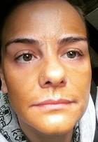 Milene Domingues surpreende ao mostrar tratamento estético de R$ 500