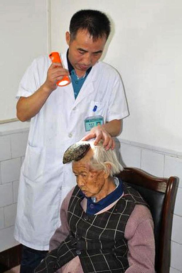 Chinesa Liang Xiuzhen, de 87 anos, viu crescer em seis meses estranho tumor na sua cabeça (Foto: Europics/The Grosby Group)