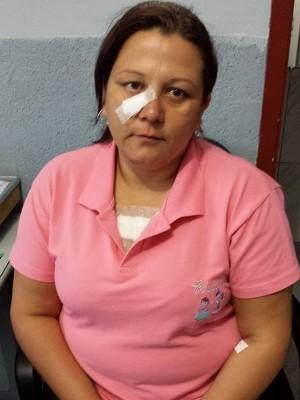 Aline Aparecida Cardoso perdeu cabelo e sofreu ferimentos (Foto: Adriana Perroni/TV Tem)