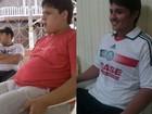 Após crise de apneia, homem muda hábitos e elimina 36 kg no Acre