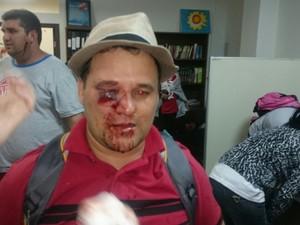 Professor se fere em confronto (Foto: Samuel Nunes/ G1)