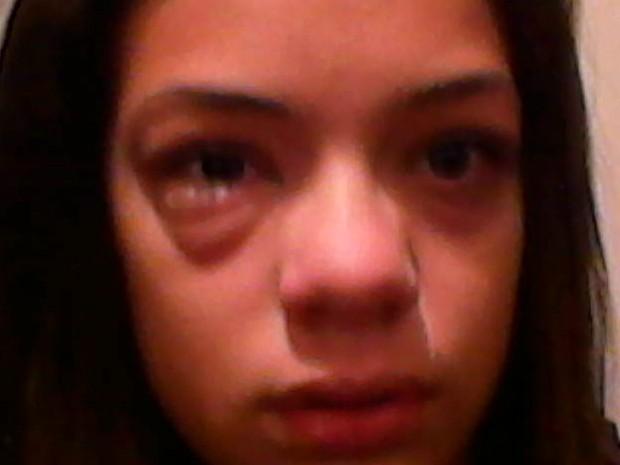 Maria Eduarda Campos, de 13 anos, afirma ter avisado sobre alergia (Foto: Ana Lucia Campos)