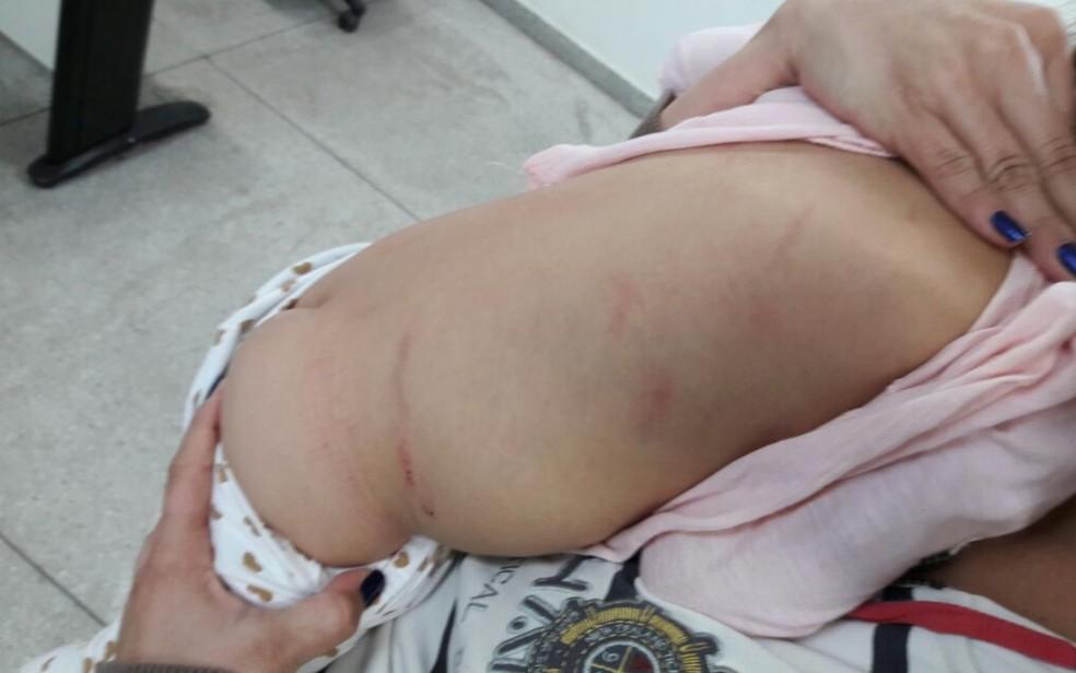 Criança de 2 anos ficou com marcas da agressão pelo corpo (Foto: Reprodução/TV Anhanguera)