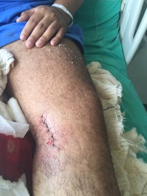 O agente passou por uma cirurgia e foi liberado (Foto: Divulgação/Polícia Civil)