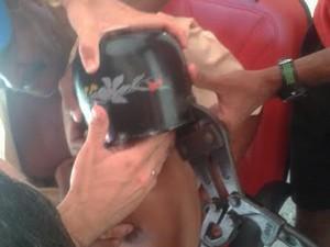 Alicate de arrombamento foi usado para retirar panela (Foto: Corpo de Bombeiros/Divulgação)