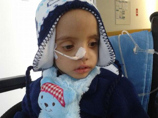 João Pedro tem dois anos e sofre de Síndrome de Berdon, uma doença sem cura (Foto: Avelita Barbosa da Silva/Arquivo pessoal)
