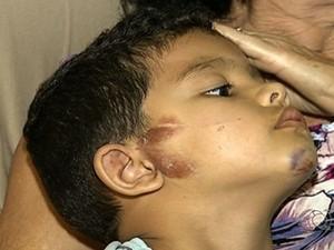 Criança machucou a orelha e ficou com hematoma no queixo (Foto: Reprodução/TV Anhanguera)