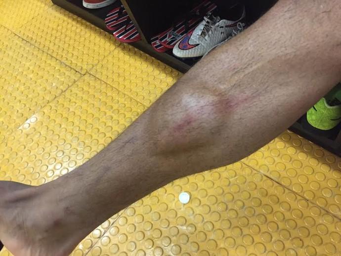 souza são paulo perna machucada (Foto: Divulgação)