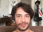 Igor Cotrim fala sobre agressão: 'Não houve sequelas, estou superbem'