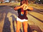 Ex-BBB Adriana mostra as pernas saradas e diz que é truque
