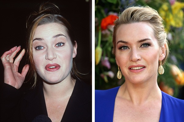 Kate Winslet em 1998 e em 2015 (Foto: Getty Images)