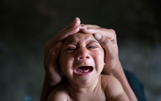 Estudo publicado no New England Journal of Medicine constata relação entre zika e microcefalia (Foto: AP Photo/Felipe Dana, File)