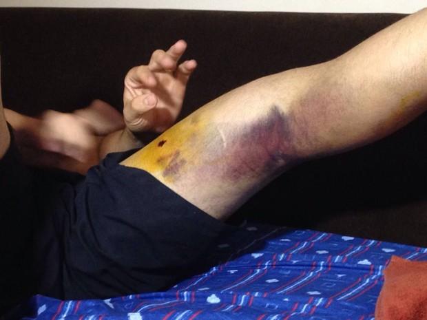Comerciante de Cubatão, SP, está com a bala alojada na perna esquerda (Foto: Cássio Lyra/G1)