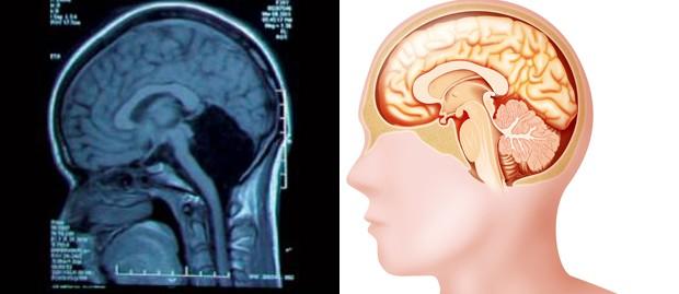 Na imagem da esquerda, exame mostra um vazio no local onde deveria estar o cerebelo; na imagem da esquerda, ilustração mostra estrutura de cérebro: cerebelo está na parte de baixo do órgão (Foto: Feng Yu et al. (esq)/JACOPIN/BSIP (dir))
